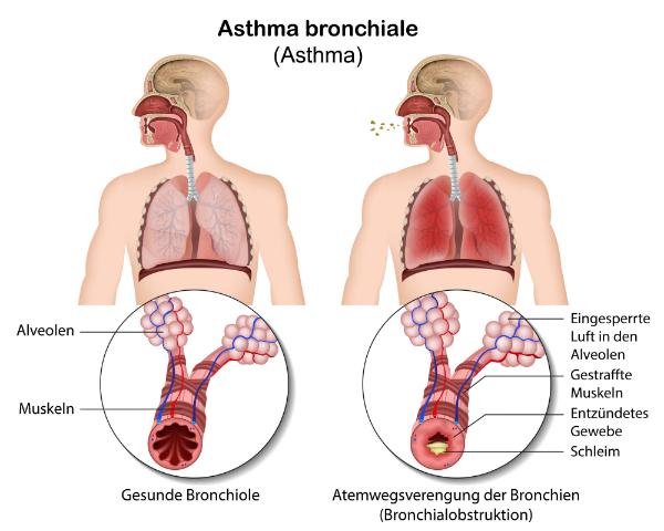 Asthma bronchiale Bronchokonstriktion
