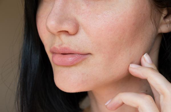 Trockene Schleimhäute können nicht nur in Nase und Mund vorkommen