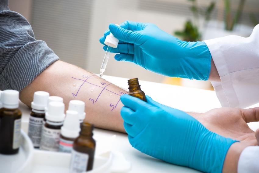 Allergietest auf dem Arm